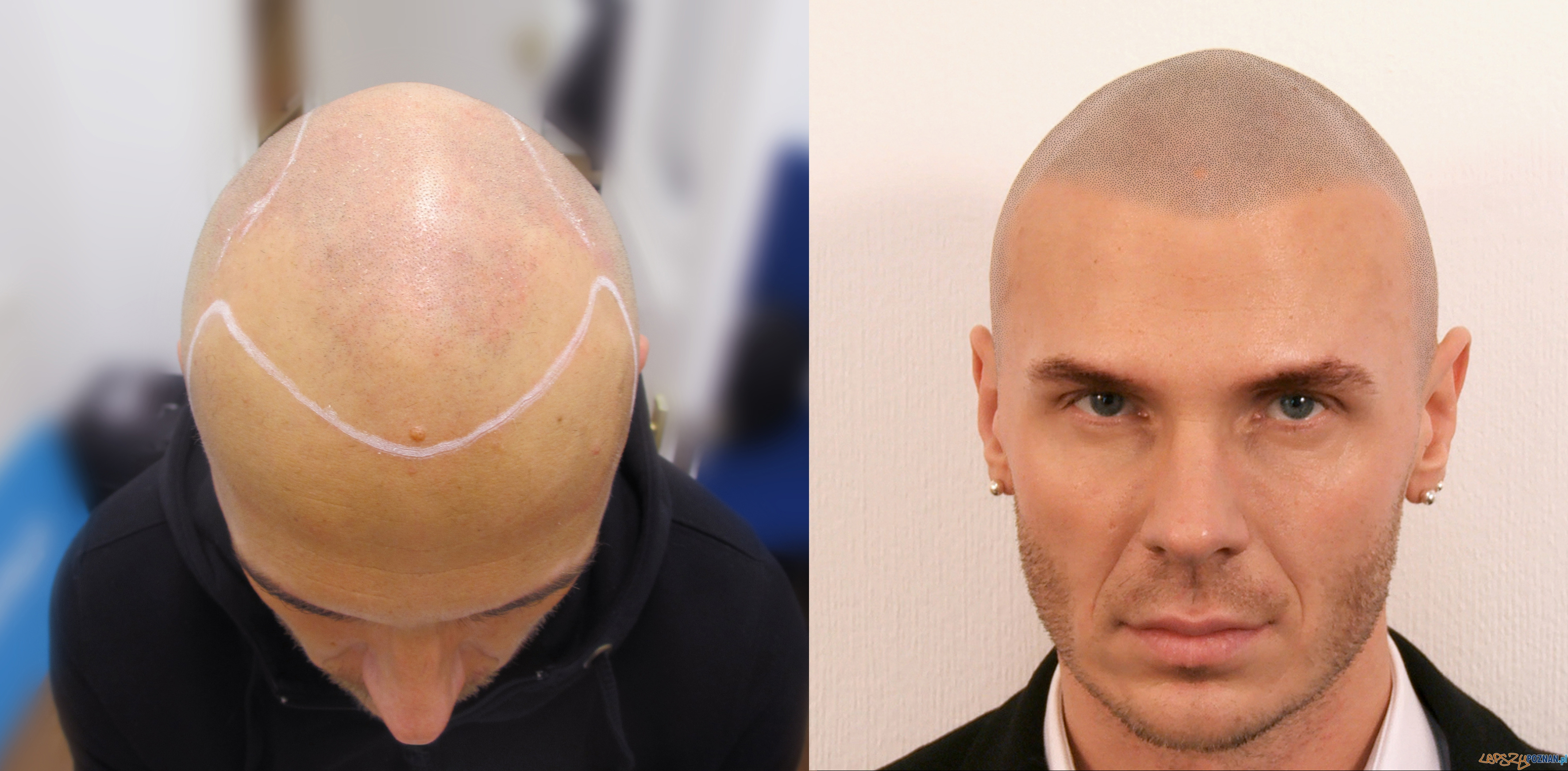 Before & After  Foto: